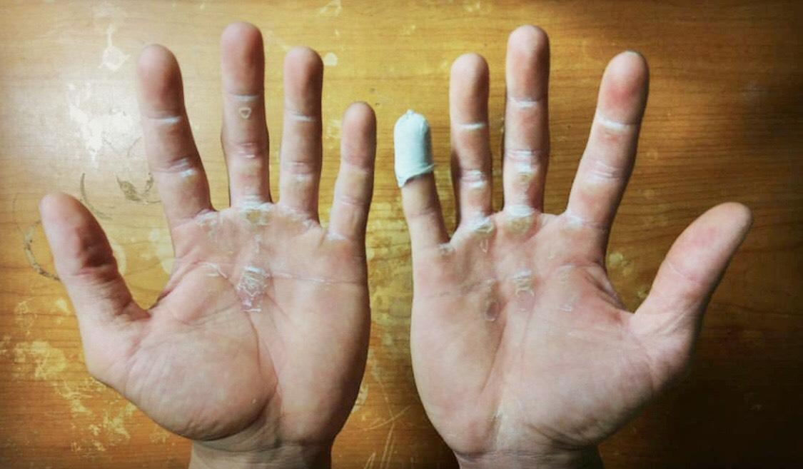 練街頭健身「破繭」該怎麼辦?可以預防嗎?